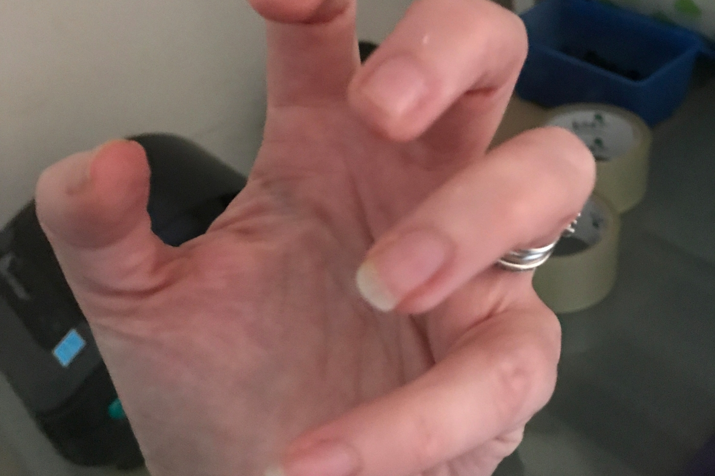 My left hand, frozen and unable to move