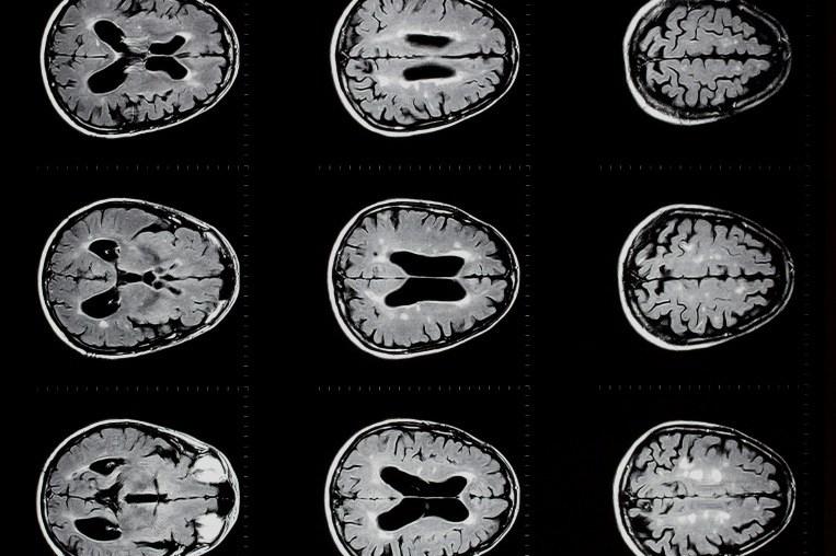 An MRI scan of a brain